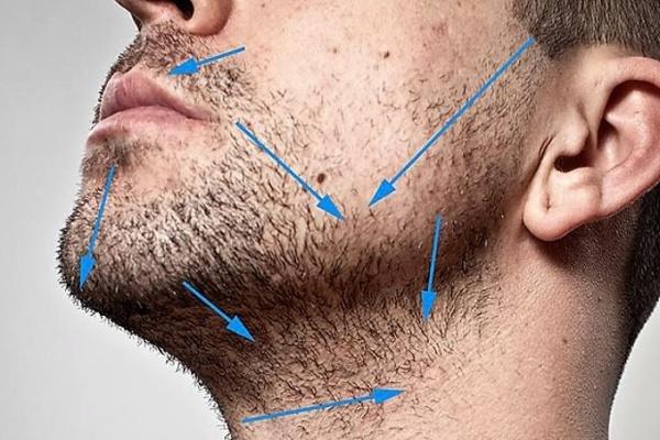 Che non si trovano i capelli dopo lepilazione